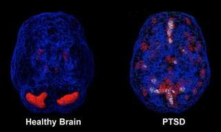 brain healthy and not scan ptsd therapy cork